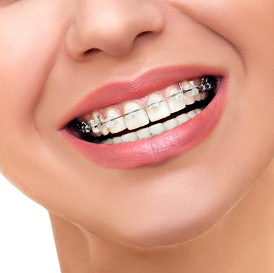 advanced technology braces